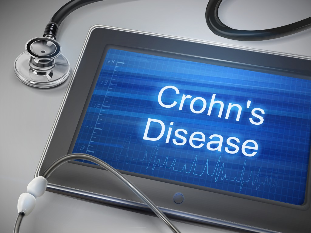 Crohn's Disease Research